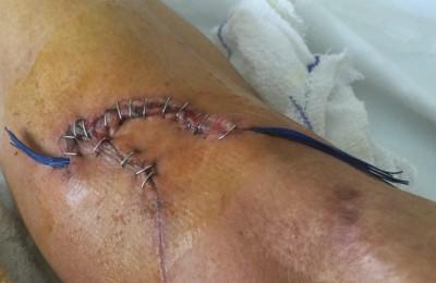 Il ginocchio di Francisco Ventoso