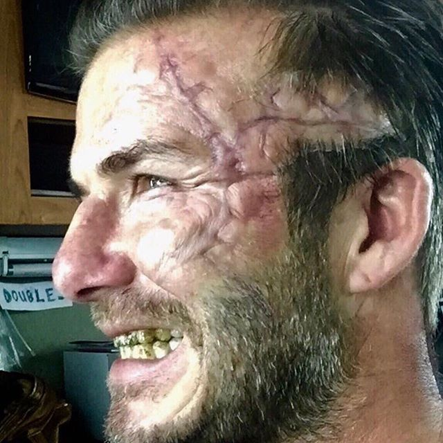 David Beckham, ma cosa hai fatto? Una cicatrice da film