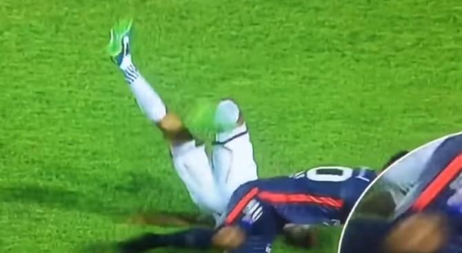 Paraguay, orribile infortunio per Prieto: la gamba si torce, frattura di tibia e perone