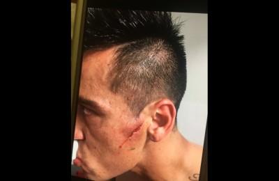 Impressionante ferita al volto per l'ex Catania Fabian Monzon: 13 punti per suturarla