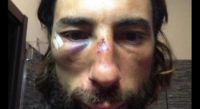 Bologna: nuova aggressione alla troupe di Striscia