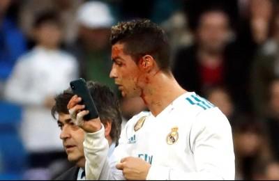 Cristiano Ronaldo, viso insanguinato: controlla con lo smartphone in campo