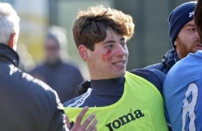 Viareggio Cup, giovane dell'Empoli ferito da un sasso lanciato da tifosi Fiorentina